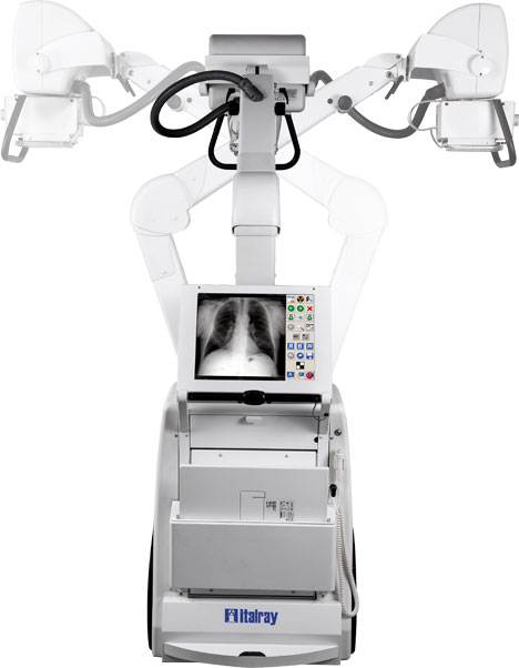 Flexibility of digital mobile x-ray