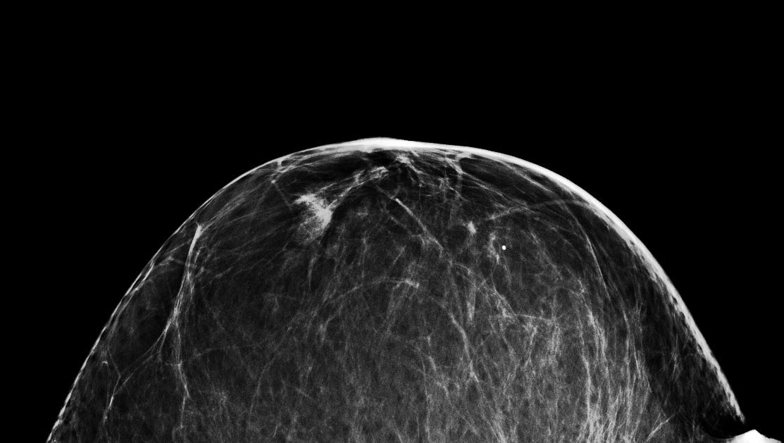 Low dose on digital mammography system